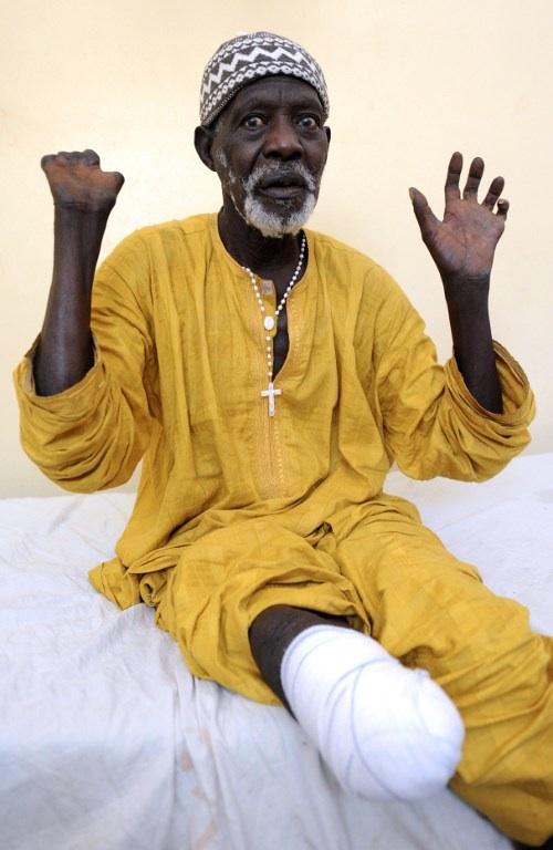Sénégal, Dakar : âgé de 77 ans, Ndoffene Diene est guéri de la lèpre. Il montre ici les séquelles qu'il garde la maladie. © AFP PHOTO / SEYLLOU