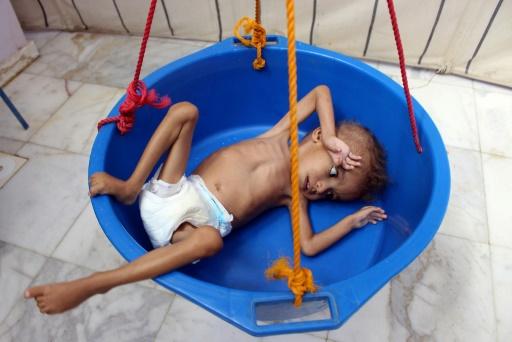 ghazi salen enfant yemen